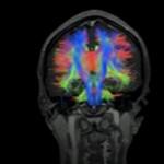 Resonancia magnética,  daño cerebral y lenguaje