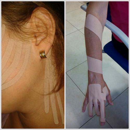 El vendaje neuromuscular en logopedia y terapia ocupacional