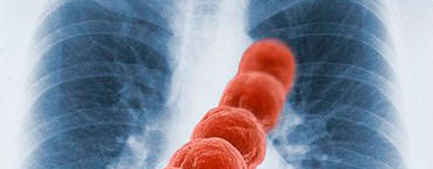 neumonía-aspirativa