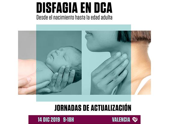 Hermanas Hospitalarias Valencia organiza una jornada sobre actualización en disfagia