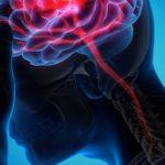 La memoria espacial en el equilibrio de los pacientes con lesiones cerebrales traumáticas